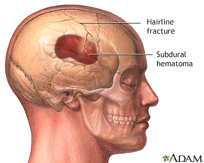 Remarkable facial fracture causing loss of smell was