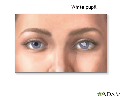 Pupil White Spots