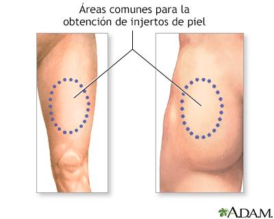 El poliritmo de los genes de la pigmentación de la piel