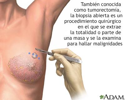 Significado de la biopsia de mama
