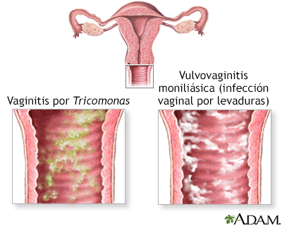 Tipos de Flujo Vaginal: Blanco, Amarillo, Marrón