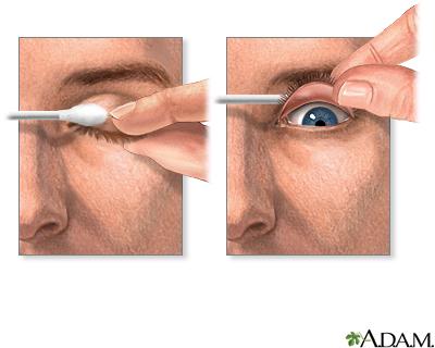 El ajuste del párpados sin quirúrgico