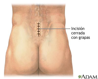Que el ejercicio de sheynogo de la osteocondrosis